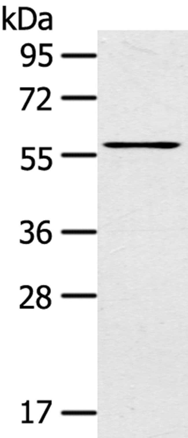 LPP Rabbit anti-Human, Mouse, Rat, Polyclonal, Invitrogen 100 µL;