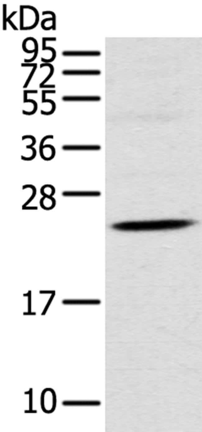 TSPAN13 Rabbit anti-Human, Mouse, Rat, Polyclonal, Invitrogen 100 µL;