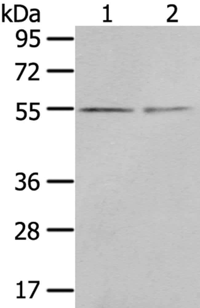 CHRDL1 Rabbit anti-Human, Polyclonal, Invitrogen 100 µL; Unconjugated