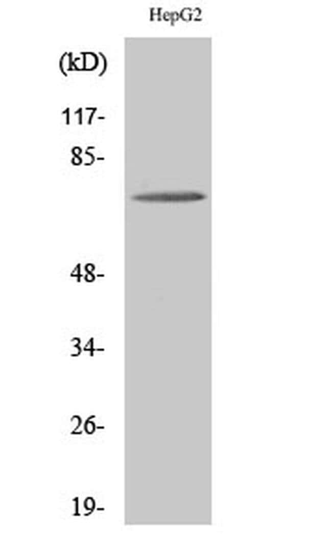 ABCD4 Rabbit anti-Human, Mouse, Polyclonal, Invitrogen 100 µL; Unconjugated