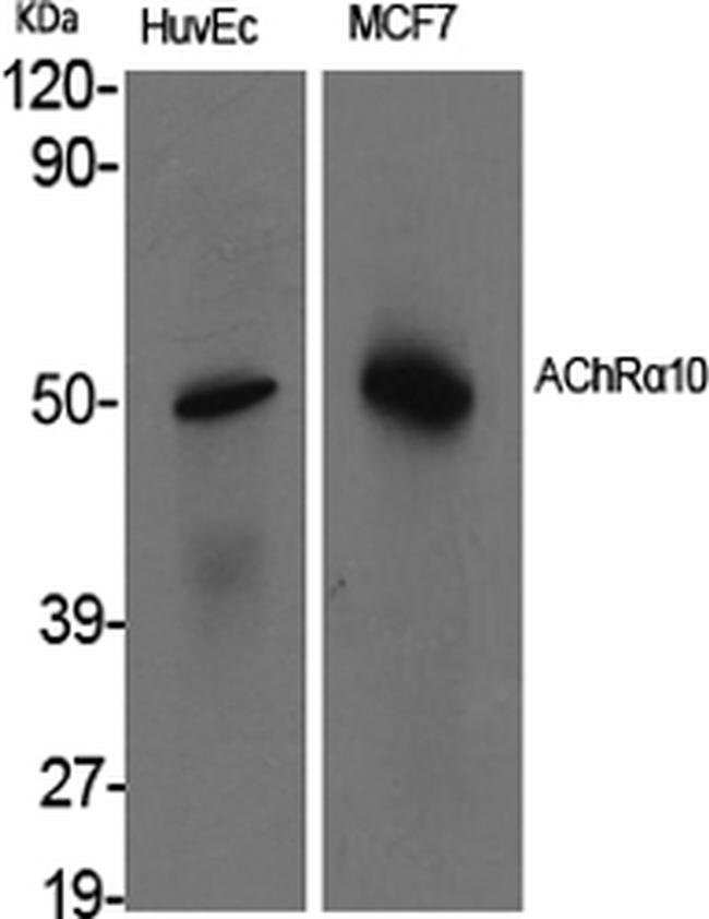CHRNA10 Rabbit anti-Human, Mouse, Rat, Polyclonal, Invitrogen 100 µL;