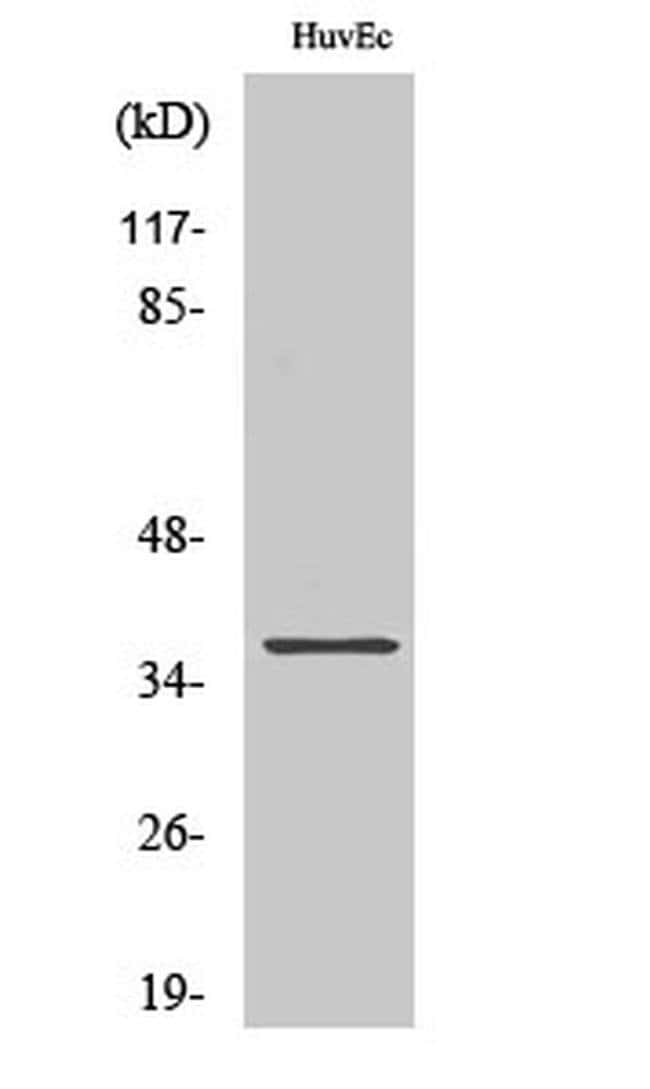 AKR1B1 Rabbit anti-Human, Rat, Polyclonal, Invitrogen 100 µL; Unconjugated