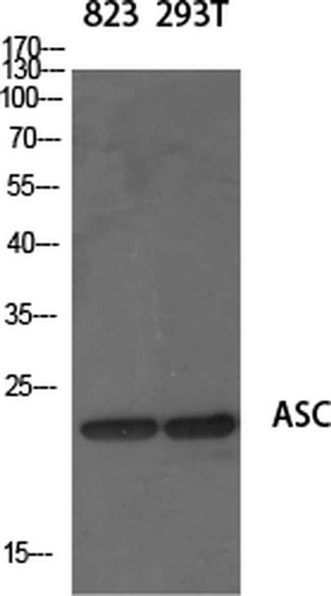 PYCARD Rabbit anti-Human, Mouse, Rat, Polyclonal, Invitrogen 100 µL;