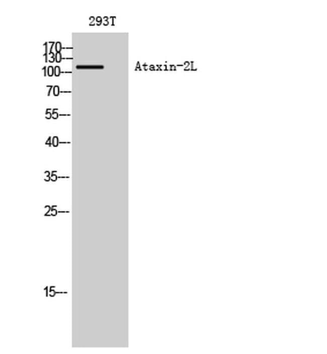 ATXN2L Rabbit anti-Human, Polyclonal, Invitrogen 100 µL; Unconjugated