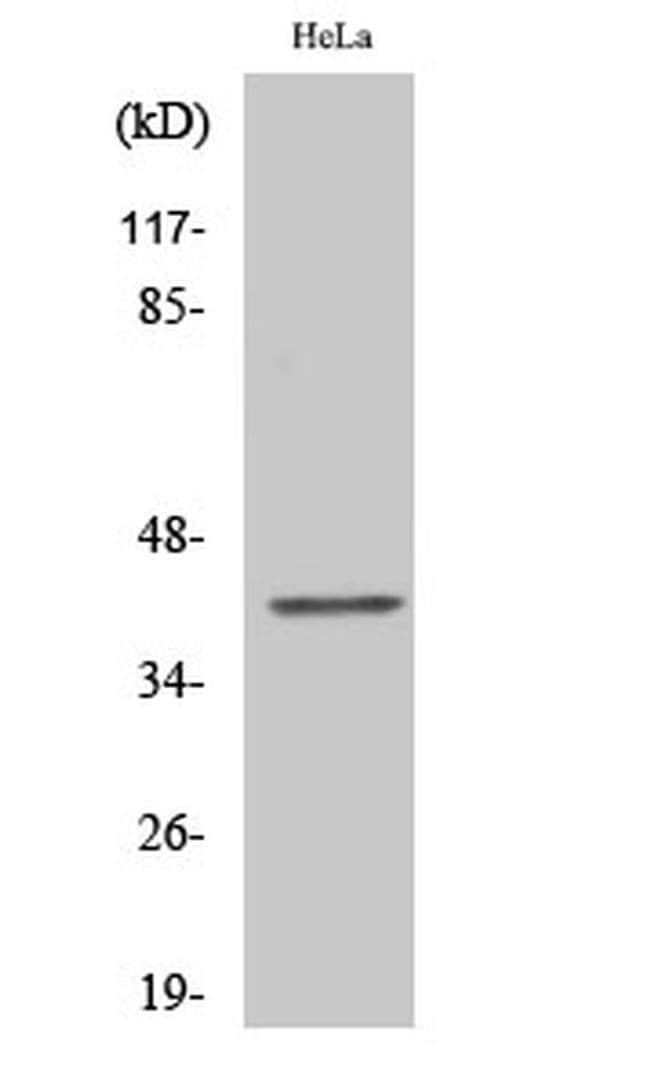 CMKLR1 Rabbit anti-Human, Mouse, Rat, Polyclonal, Invitrogen 100 µL;