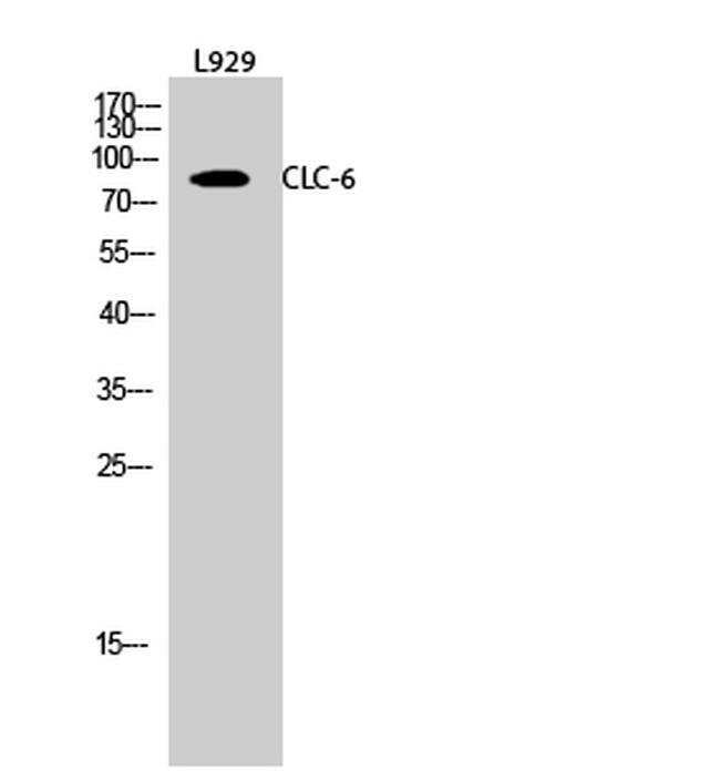 CLCN6 Rabbit anti-Human, Mouse, Non-human primate, Rat, Polyclonal, Invitrogen