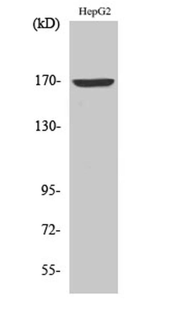 COL4A6 Rabbit anti-Human, Polyclonal, Invitrogen 100 µL; Unconjugated