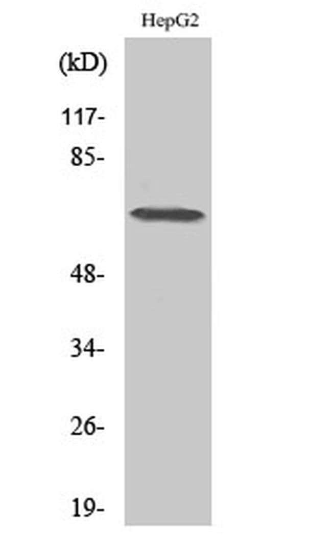 DDX52 Rabbit anti-Human, Polyclonal, Invitrogen 100 µL; Unconjugated
