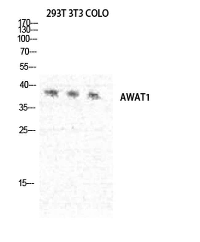 AWAT1 Rabbit anti-Human, Polyclonal, Invitrogen 100 µL; Unconjugated