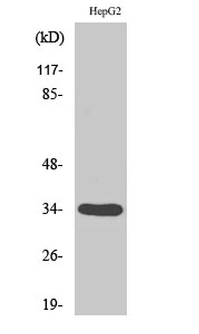 DHRS4 Rabbit anti-Human, Polyclonal, Invitrogen 100 µL; Unconjugated
