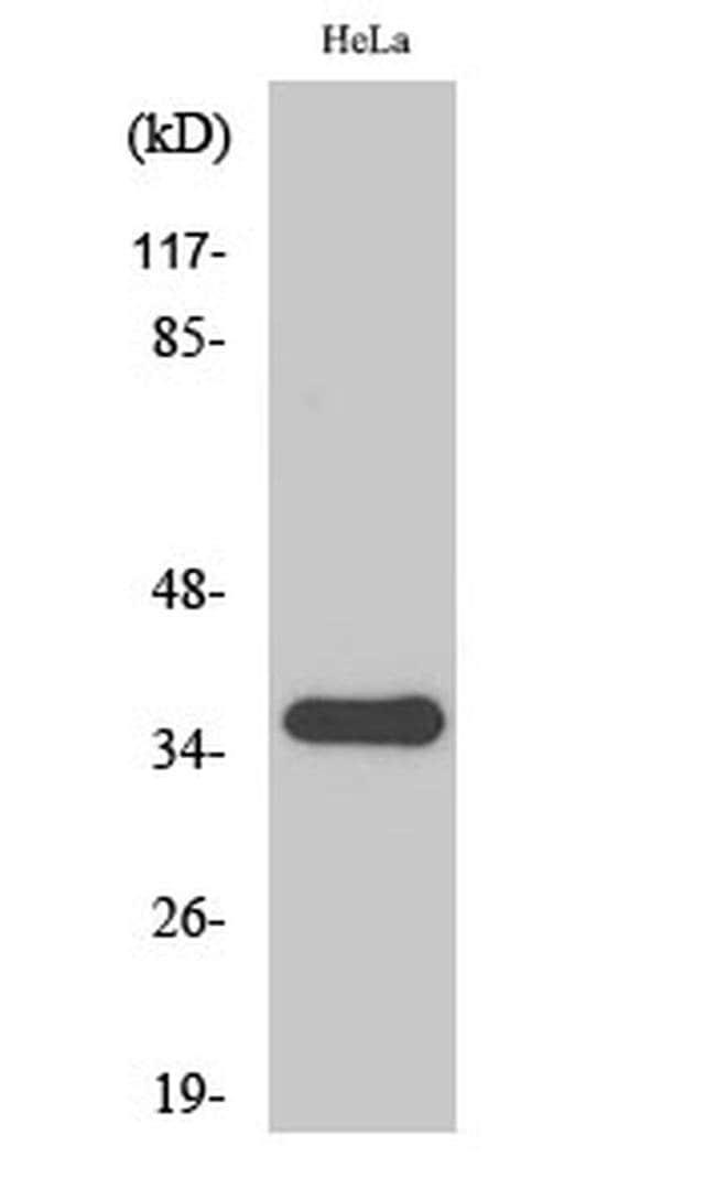 SFRP2 Rabbit anti-Human, Mouse, Rat, Polyclonal, Invitrogen 100 µL;