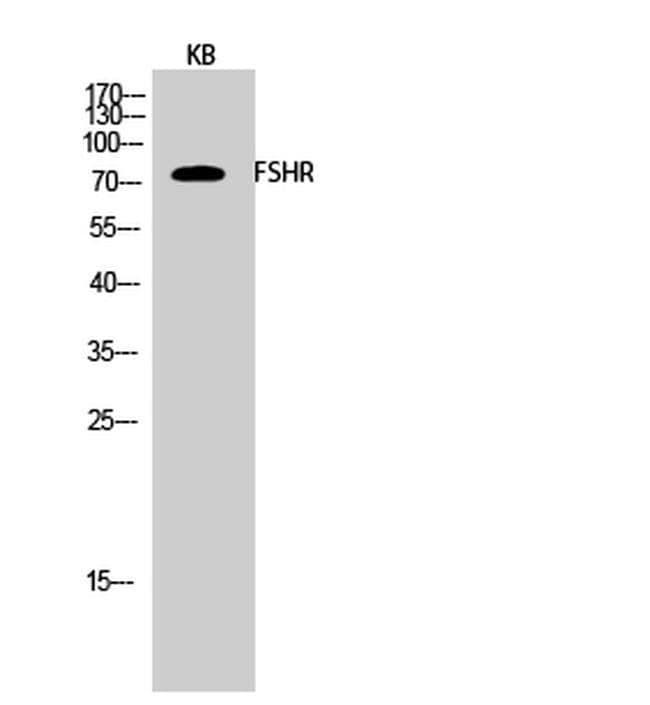 FSHR Rabbit anti-Human, Mouse, Rat, Polyclonal, Invitrogen 100 µL;