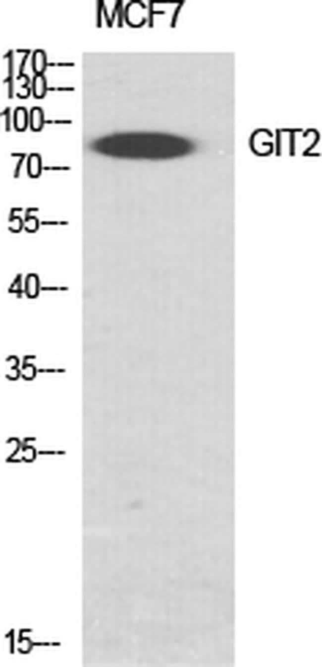 GIT2 Rabbit anti-Human, Mouse, Rat, Polyclonal, Invitrogen 100 µL;