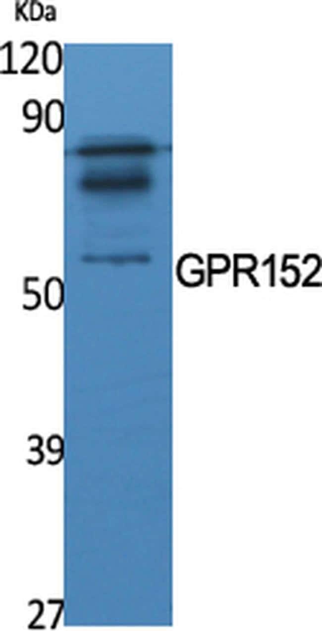 GPR152 Rabbit anti-Human, Polyclonal, Invitrogen 100 µL; Unconjugated