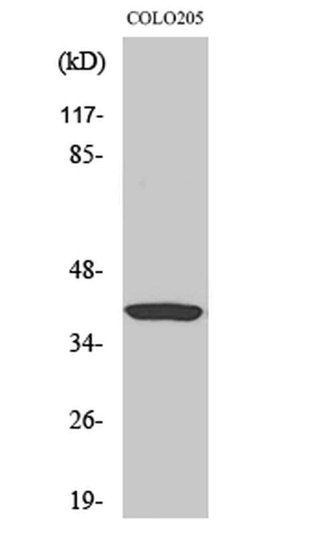 GNAT1 Rabbit anti-Human, Mouse, Rat, Polyclonal, Invitrogen 100 µL;