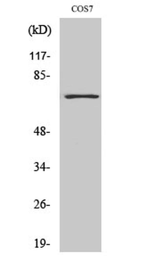 HDAC10 Rabbit anti-Human, Mouse, Non-human primate, Rat, Polyclonal, Invitrogen