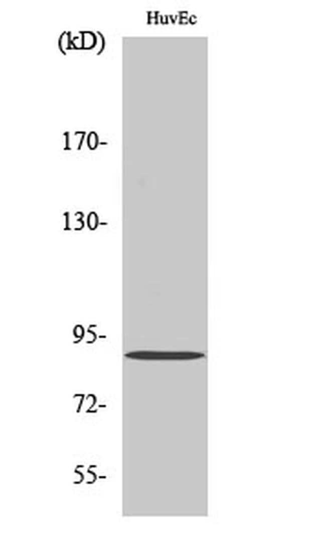PNPLA8 Rabbit anti-Human, Mouse, Polyclonal, Invitrogen 100 µL; Unconjugated