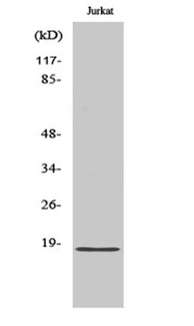 PPP1R14C Rabbit anti-Human, Mouse, Rat, Polyclonal, Invitrogen 100 µL;