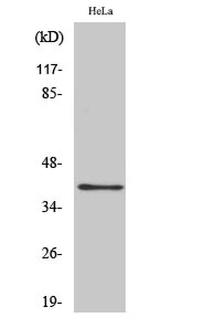 P2Y4 Rabbit anti-Human, Mouse, Rat, Polyclonal, Invitrogen 100 µL;