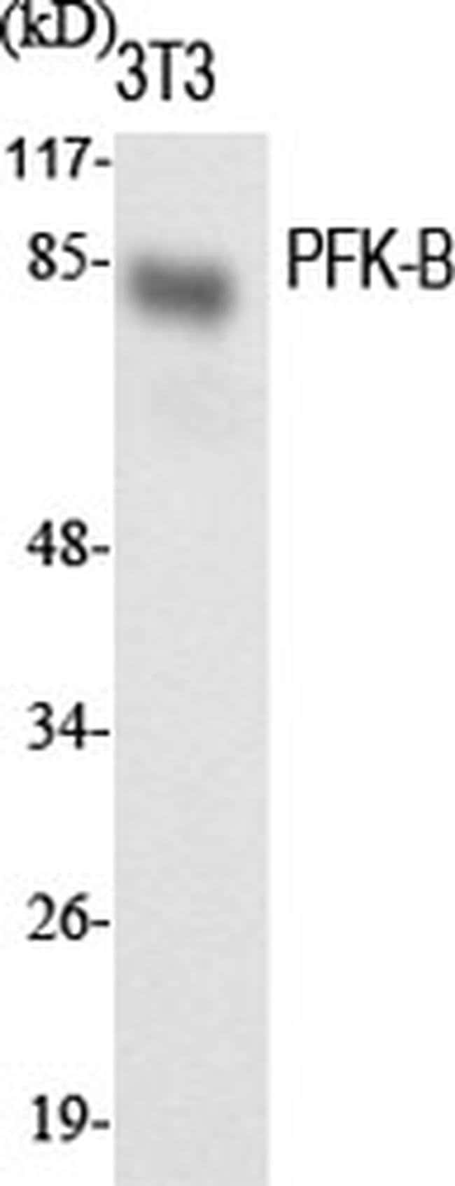 PFKL Rabbit anti-Human, Mouse, Rat, Polyclonal, Invitrogen 100 µL;