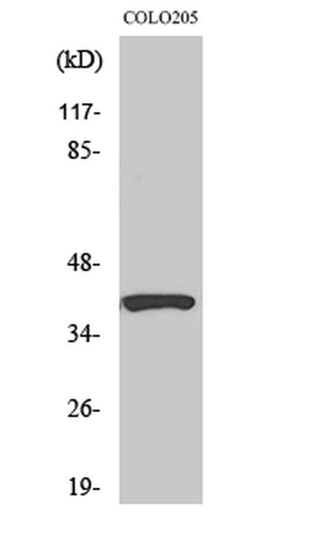 SERPINB9 Rabbit anti-Human, Mouse, Rat, Polyclonal, Invitrogen 100 µL;