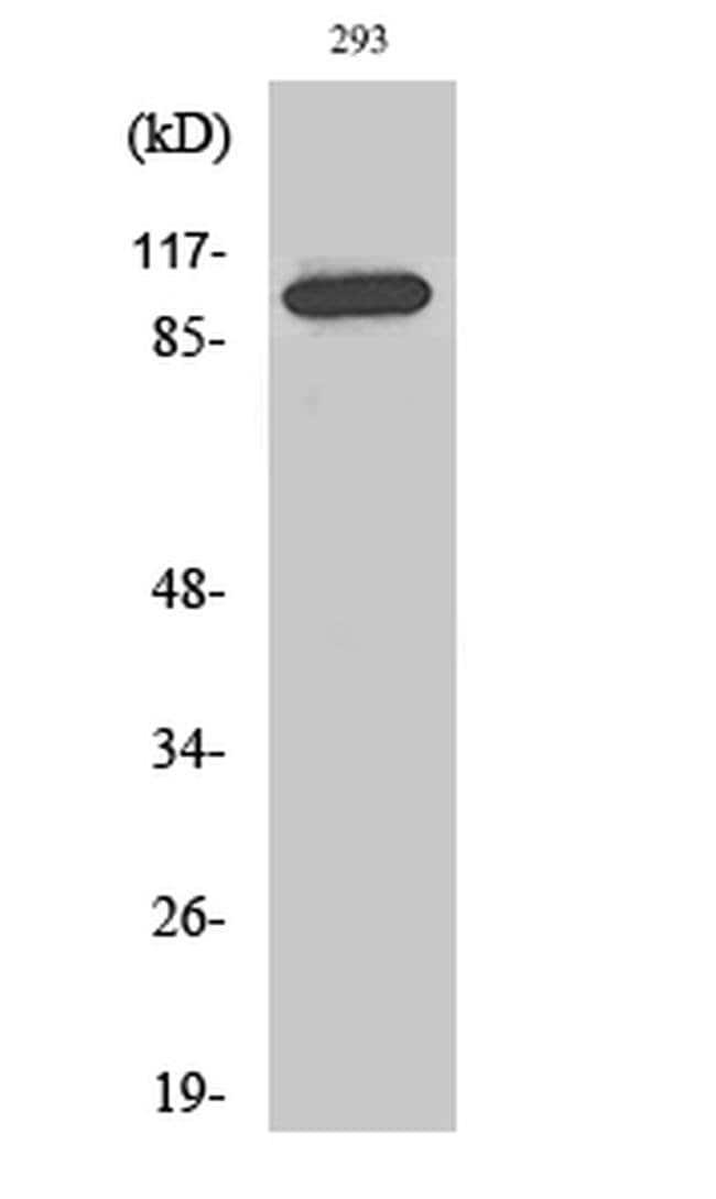 CDCA2 Rabbit anti-Human, Polyclonal, Invitrogen 100 µL; Unconjugated