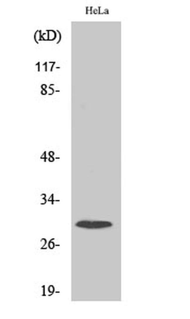 RPS4X Rabbit anti-Human, Mouse, Rat, Polyclonal, Invitrogen 100 µL;