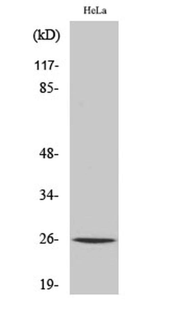 CMPK1 Rabbit anti-Human, Mouse, Rat, Polyclonal, Invitrogen 100 µL;