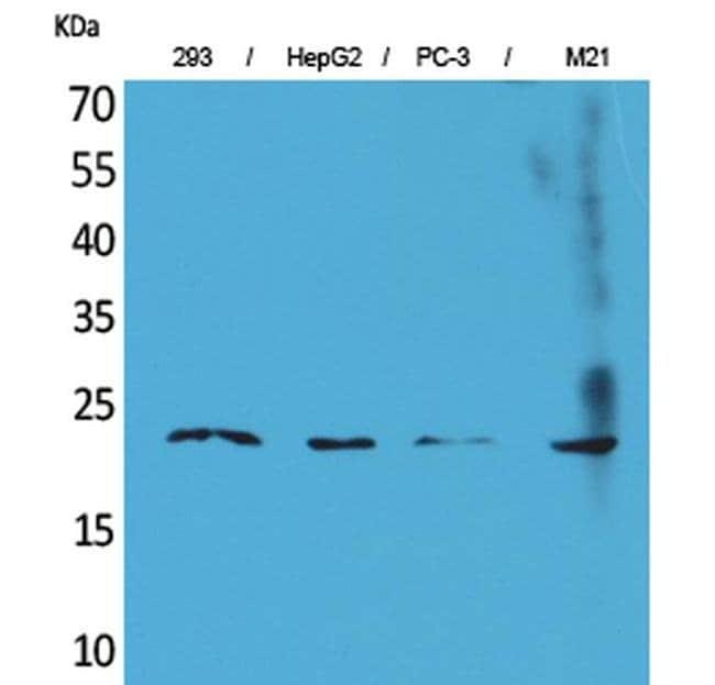 FGF6 Rabbit anti-Human, Mouse, Rat, Polyclonal, Invitrogen 100 µL;