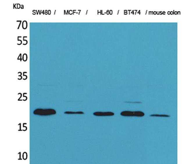 FGF20 Rabbit anti-Human, Mouse, Rat, Polyclonal, Invitrogen 100 µL;