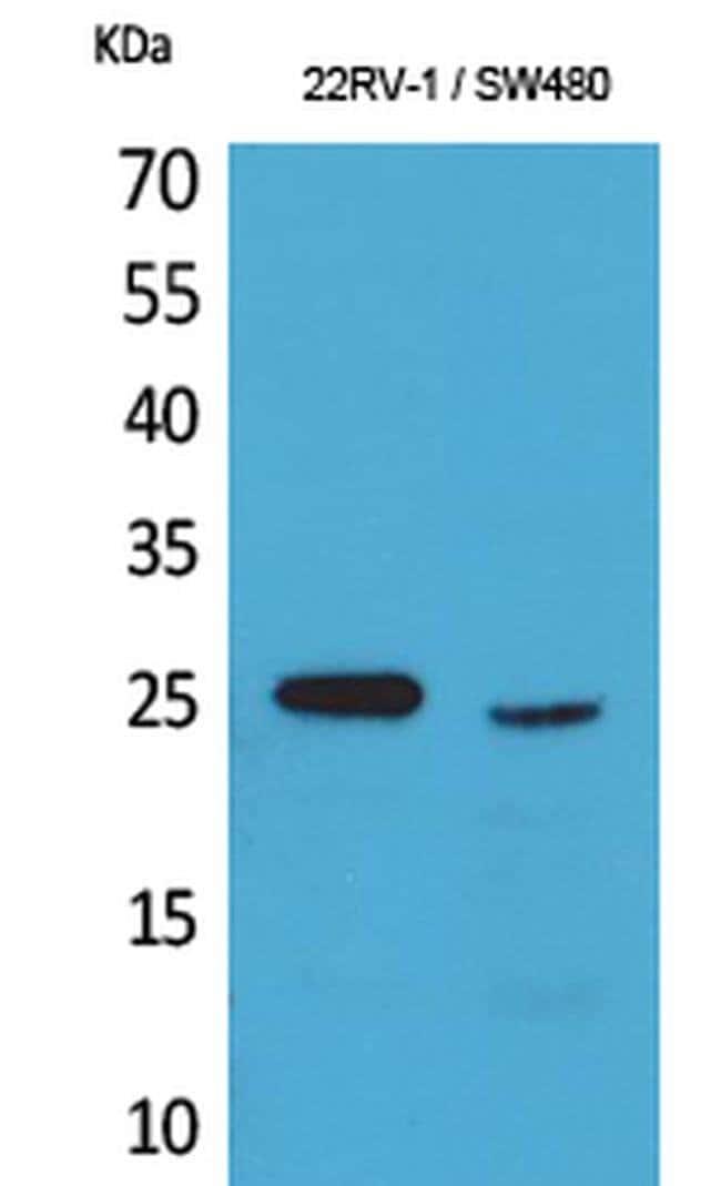 SSX1 Rabbit anti-Human, Polyclonal, Invitrogen 100 µL; Unconjugated