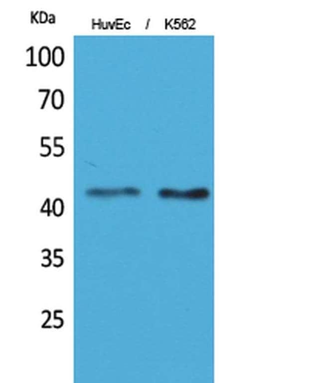 Layilin Rabbit anti-Human, Mouse, Rat, Polyclonal, Invitrogen 100 µL;