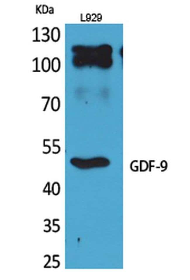 GDF9 Rabbit anti-Human, Mouse, Rat, Polyclonal, Invitrogen 100 µL;