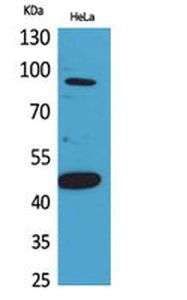 INHBB Rabbit anti-Human, Mouse, Rat, Polyclonal, Invitrogen 100 µL;