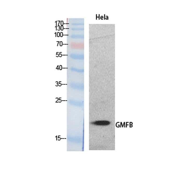 GMFB Rabbit anti-Human, Mouse, Rat, Polyclonal, Invitrogen 100 µL;
