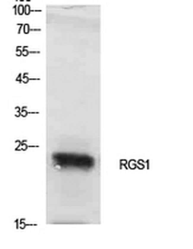RGS1 Rabbit anti-Human, Mouse, Rat, Polyclonal, Invitrogen 100 µL;