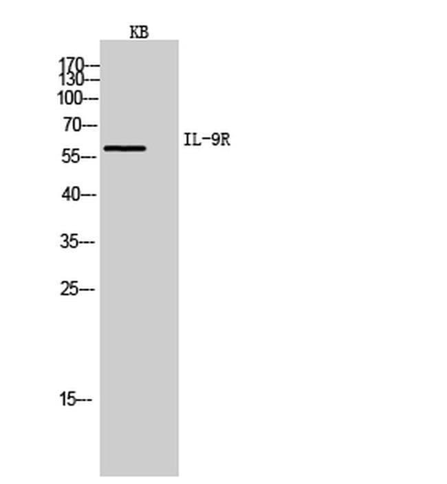 IL9R Rabbit anti-Human, Polyclonal, Invitrogen 100 µL; Unconjugated