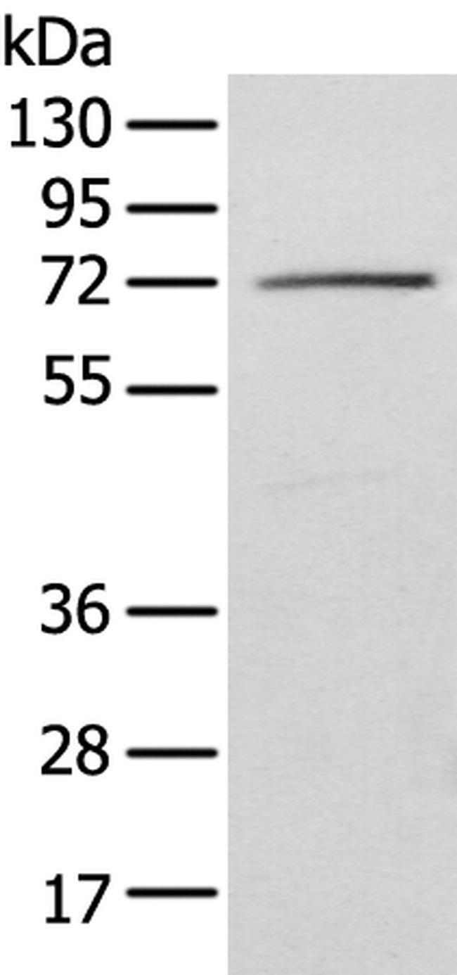 IGF2BP3 Rabbit anti-Human, Polyclonal, Invitrogen 100 µL; Unconjugated