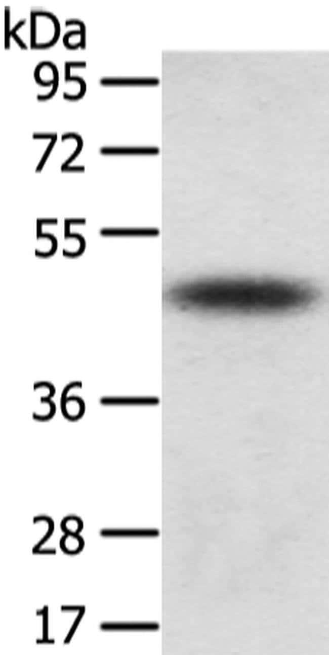 TTC23 Rabbit anti-Human, Mouse, Polyclonal, Invitrogen 100 µL; Unconjugated