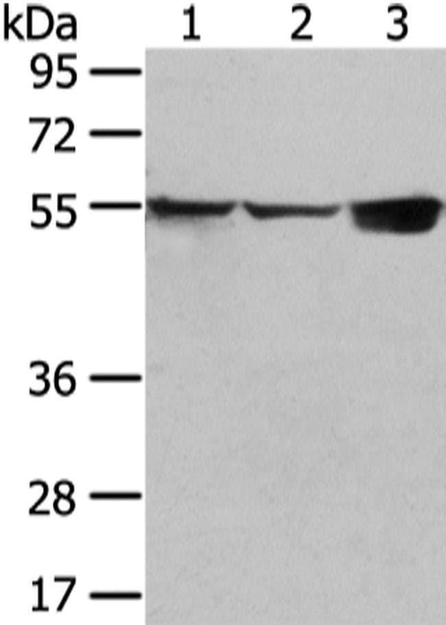 UGT1A10 Rabbit anti-Human, Mouse, Polyclonal, Invitrogen 100 µL; Unconjugated