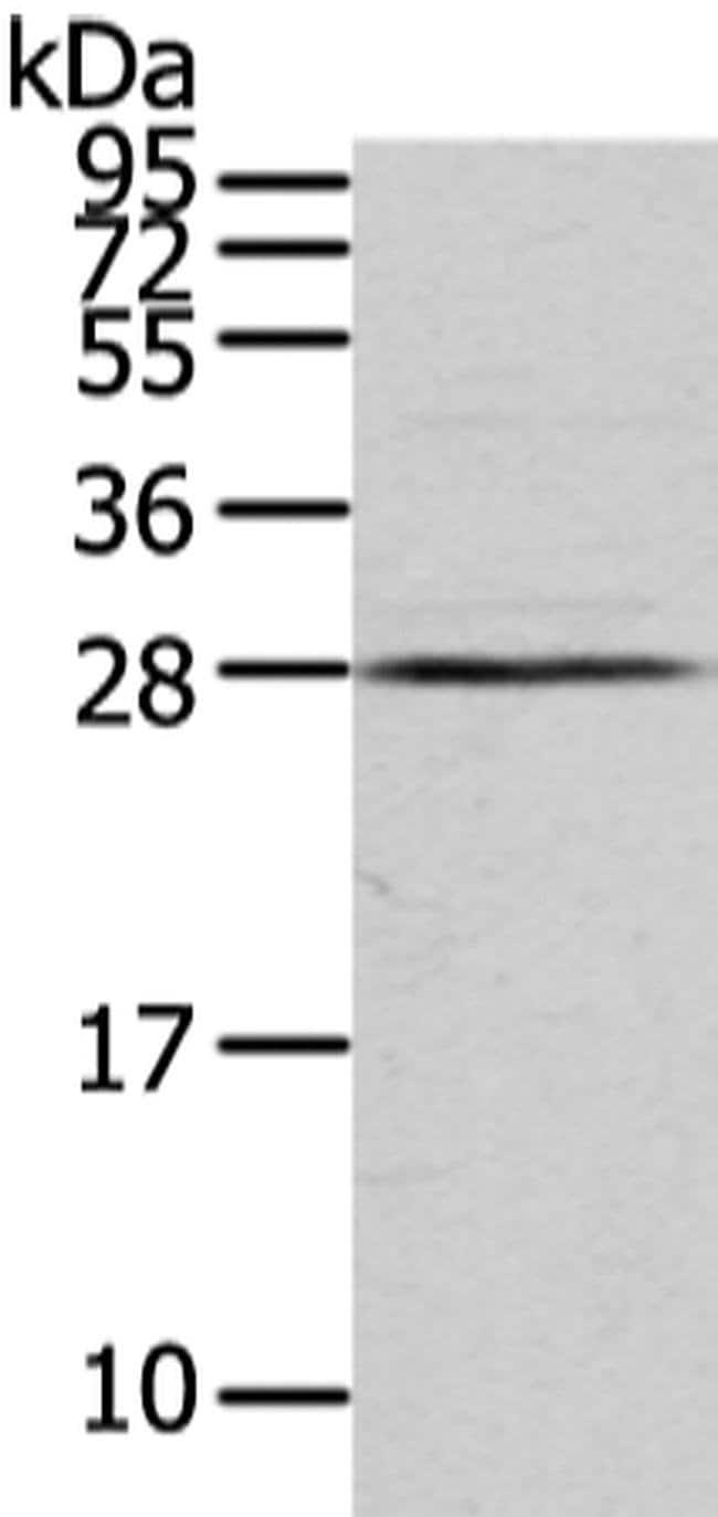VDAC3 Rabbit anti-Human, Polyclonal, Invitrogen 100 µL; Unconjugated
