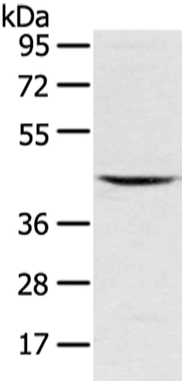 VSIG8 Rabbit anti-Human, Mouse, Polyclonal, Invitrogen 100 µL; Unconjugated