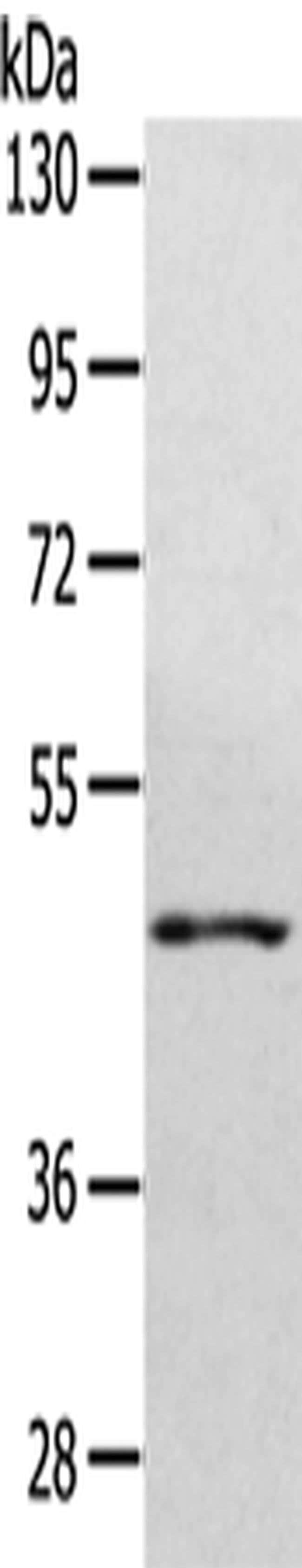 WDR4 Rabbit anti-Human, Mouse, Polyclonal, Invitrogen 100 µL; Unconjugated