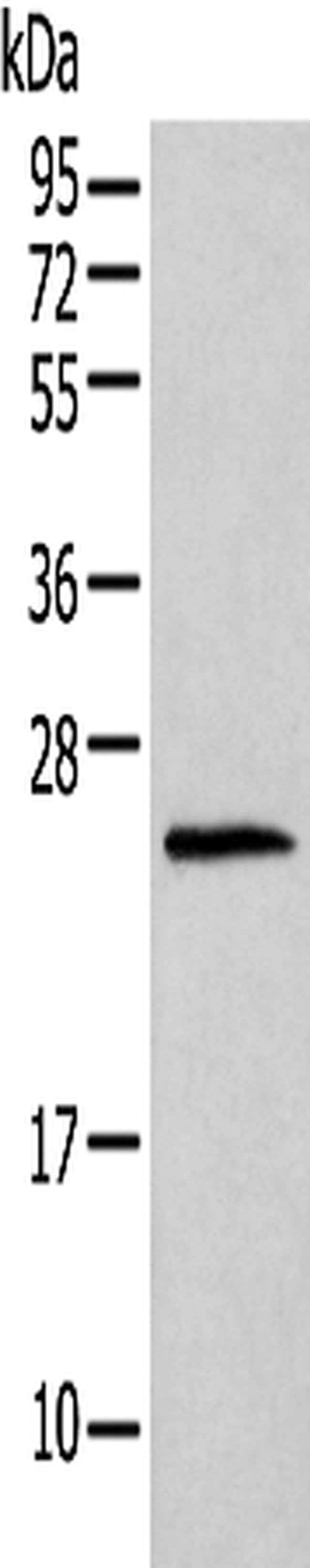 Histone H1T Rabbit anti-Human, Mouse, Polyclonal, Invitrogen 100 µL;