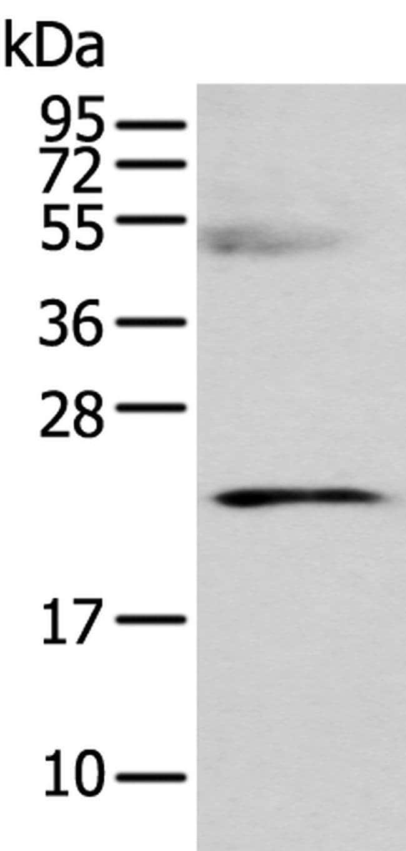C8G Rabbit anti-Human, Polyclonal, Invitrogen 100 µL; Unconjugated