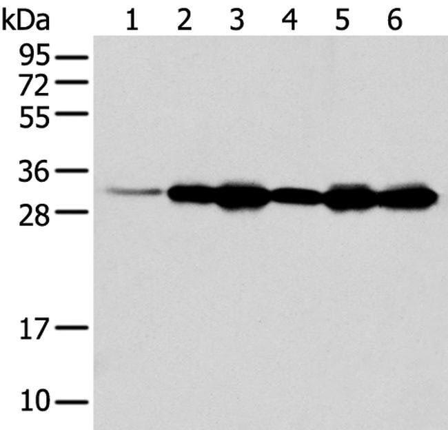 NUDT22 Rabbit anti-Human, Polyclonal, Invitrogen 100 µL; Unconjugated