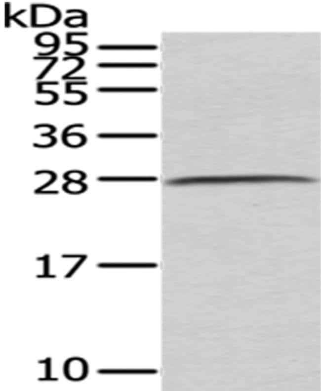 C1QB Rabbit anti-Human, Mouse, Polyclonal, Invitrogen 100 µL; Unconjugated