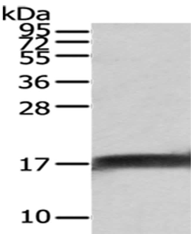 NPC2 Rabbit anti-Human, Mouse, Polyclonal, Invitrogen 100 µL; Unconjugated