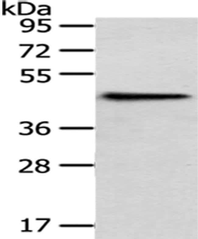 HPD Rabbit anti-Human, Mouse, Polyclonal, Invitrogen 100 µL; Unconjugated