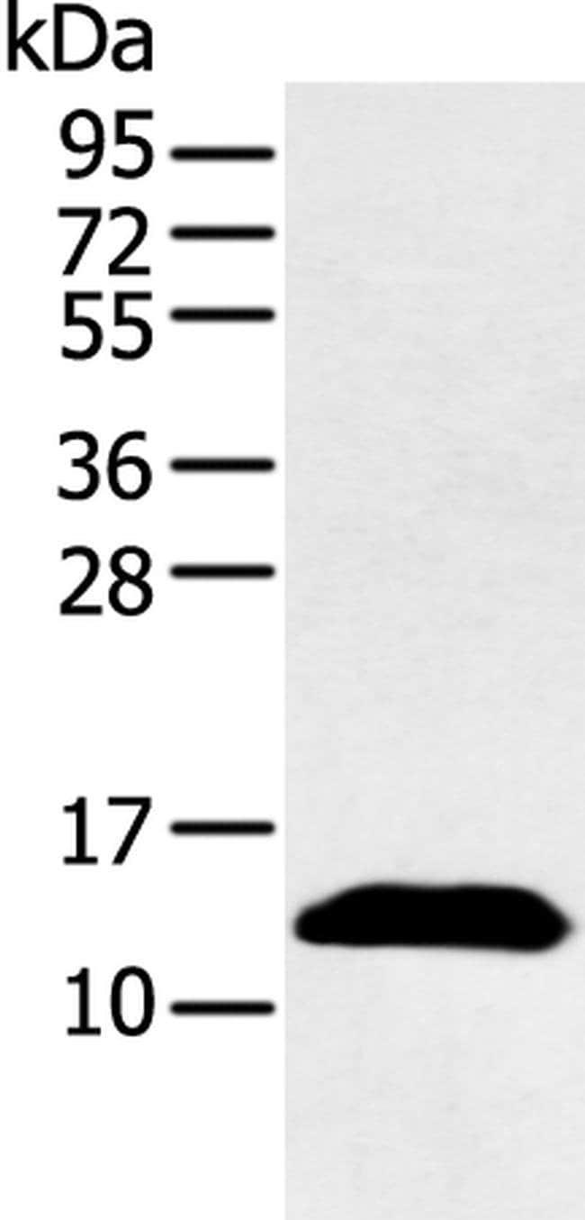 PPBP Rabbit anti-Human, Polyclonal, Invitrogen 100 µL; Unconjugated